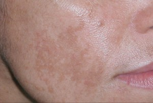 Botox Option -- Moisturizer in it Wrinkle Lotion That is Functions! -- free of charge post thanks to ArticleCity. com