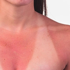 Greatest Sunburn Home made Remedy -- Wellness