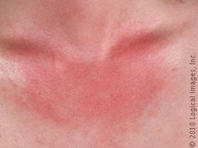How you can Identify As well as Deal with Leucoderma