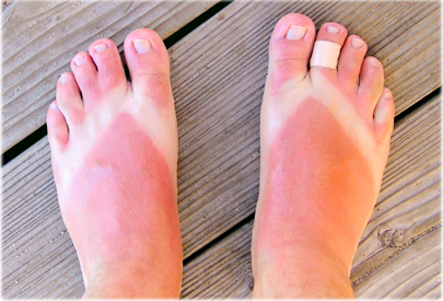 The long run Results associated with Sunburn -- Preventing Scare tissue In the Sunlight