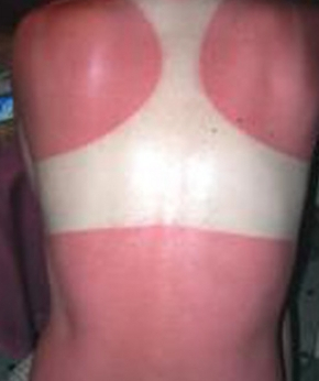 Coping with Sunburns -- Wellness