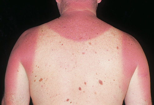 Sunburn Alleviation Ideas Which are Shown to be Efficient -- Wellness