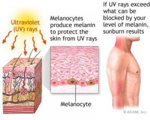 Sunlight Burn off Results, Safeguards as well as Treatments