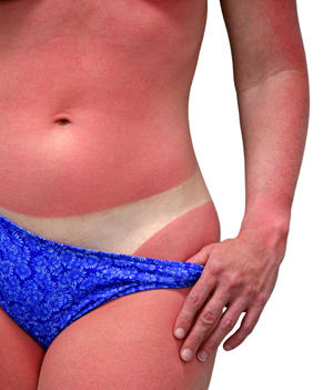 How you can deal with sunburn naturally? Here is your own grandma