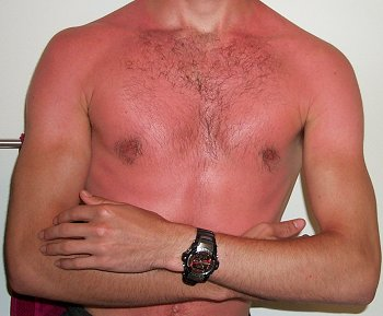 Ways to get Organic Sunburn Alleviation