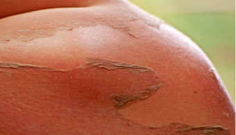 Sunburn Remedy Which Soothes The actual Discomfort -- Wellness