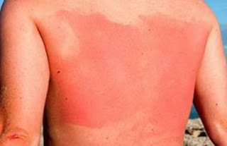 Calming Treatments -- Dealing with Sunburn