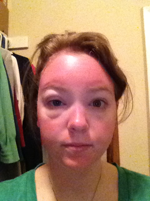 Safeguard Your own Kitty Towards Sunburn As well as Pores and skin Most cancers. through Kate Tilmouth