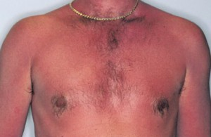 Sunburn Remedy -- Superb Ideas as well as Recommendations for A person